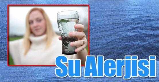 Su Alerjisi Kadınları Daha Çok Etkiliyor