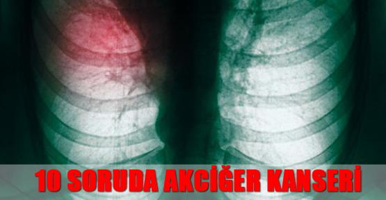 10 Soruda Akciğer Kanseri
